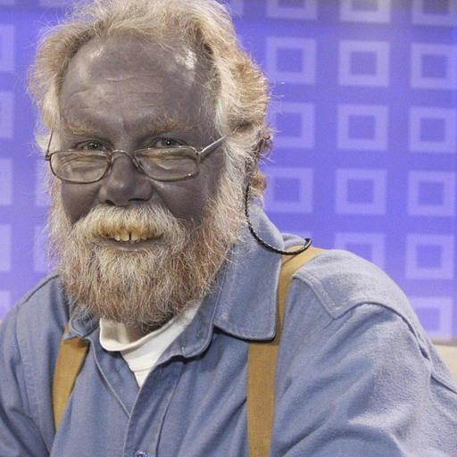 The Blue Man And Argyria Scare Stories
